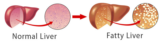 Dietary Treatment for Fatty Liver